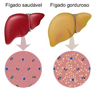 Esteatose hepática: fígado gorduroso